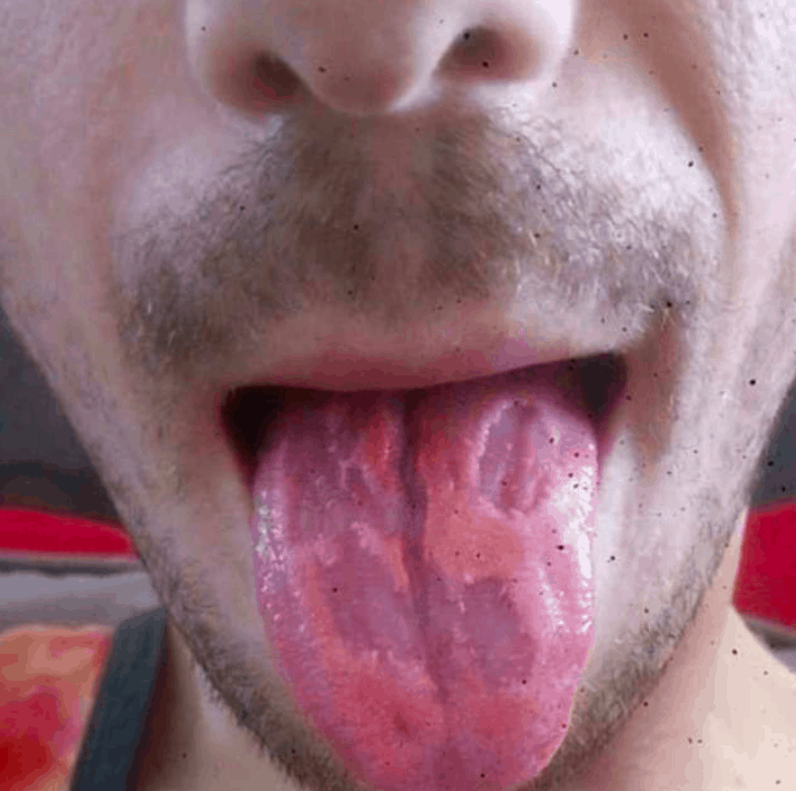 Energy drinks decayed this man's tongue