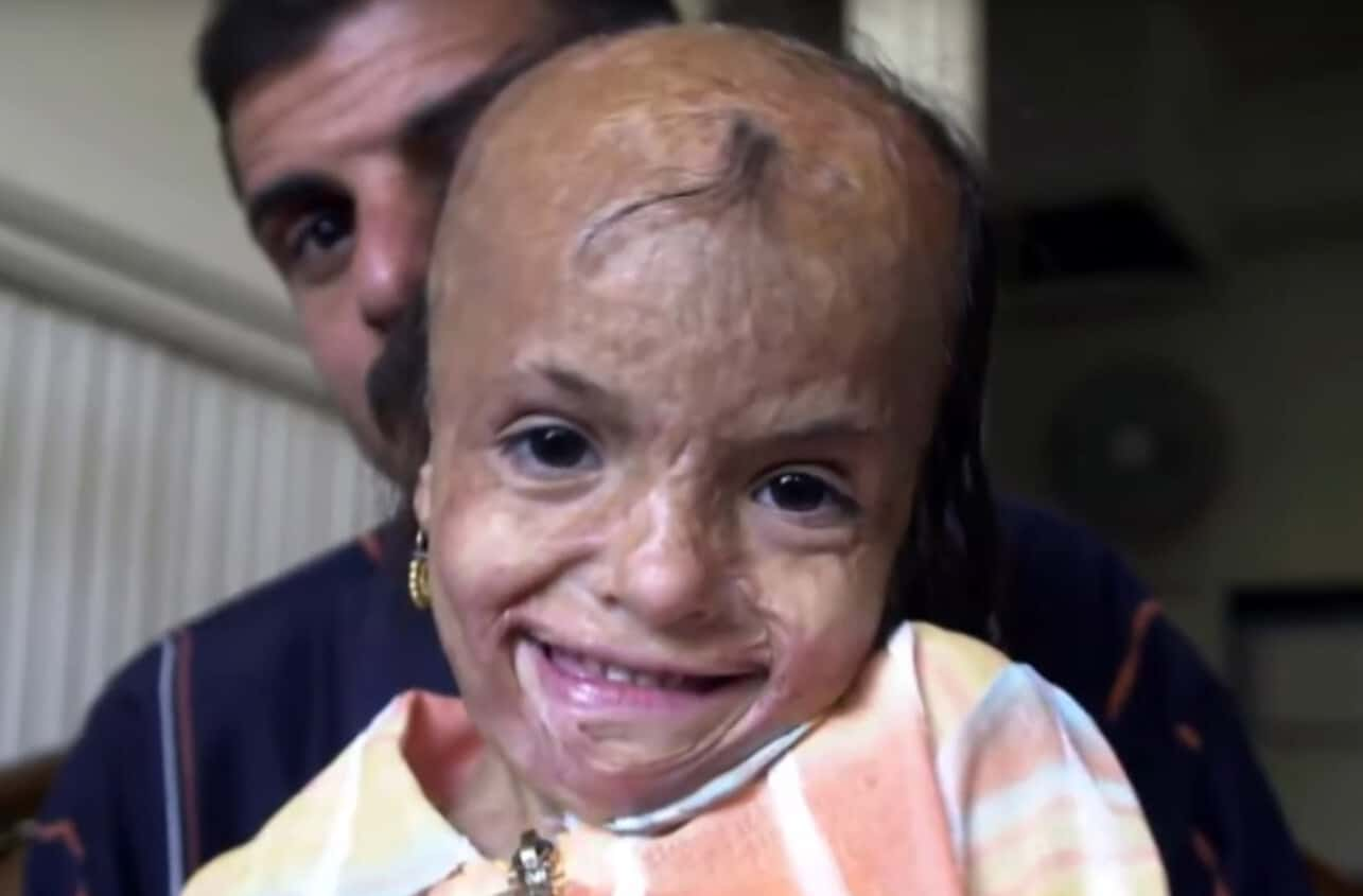 burned girl given second chance