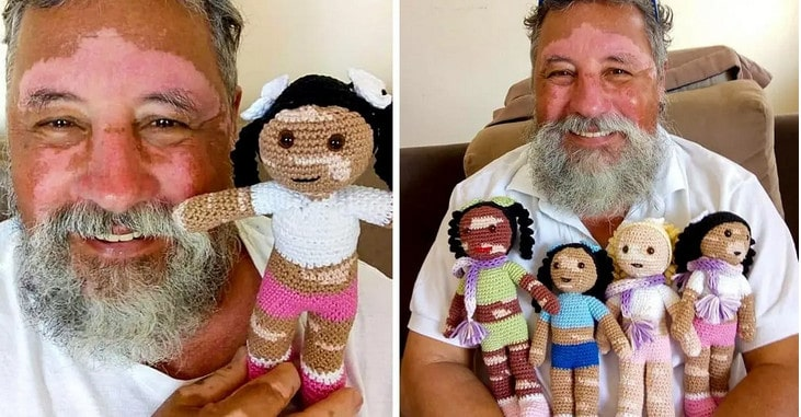 Grandpa With Vitiligo Knits Adorable Dolls For Kids With His Condition